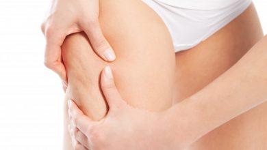 tutti i rimedi per eliminare la cellulite