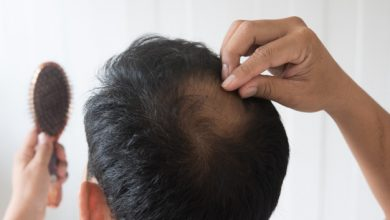 Alopecia: perdita di peli e capelli a chiazze o totale