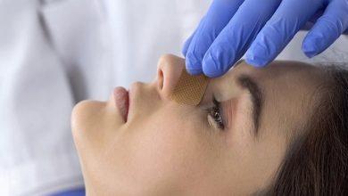 Rinoplastica chirurgia estetica